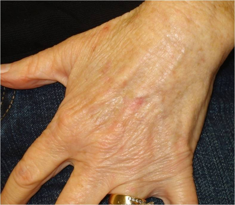 Hands After 70yo