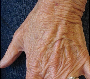 Hands-Before-70yo