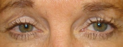 2glabella frown lines 1 wk after dysport