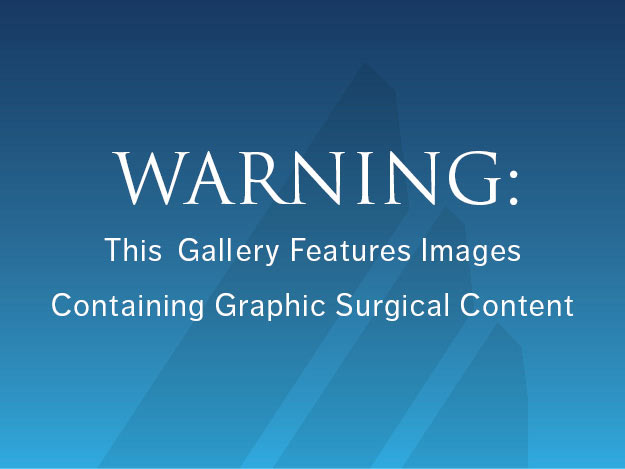 Graphical content warning. Click to reveal surgical images